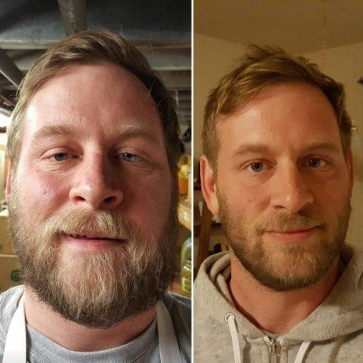 Как отказ от алкоголя возвращает красоту: до и после
