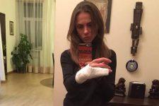 коп сломал руку женщине