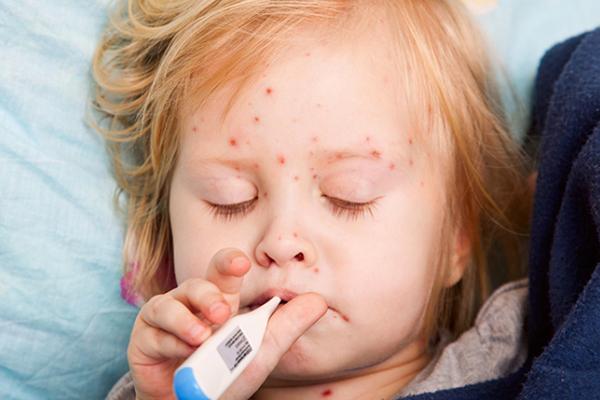 ВОдесской области из-за религиозного фанатизма родителей 20 детей заболели корью