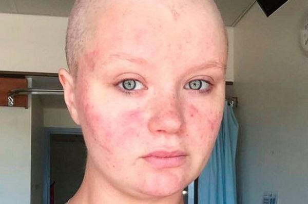 ВСоединенном Королевстве Великобритании женщина «родила» раковую опухоль— неповторимый случай