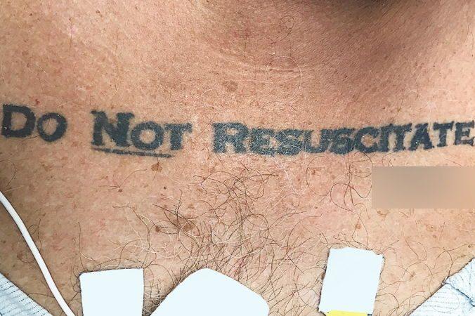 Мед. сотрудники неспасли пациента из-за татуировки споследним желанием