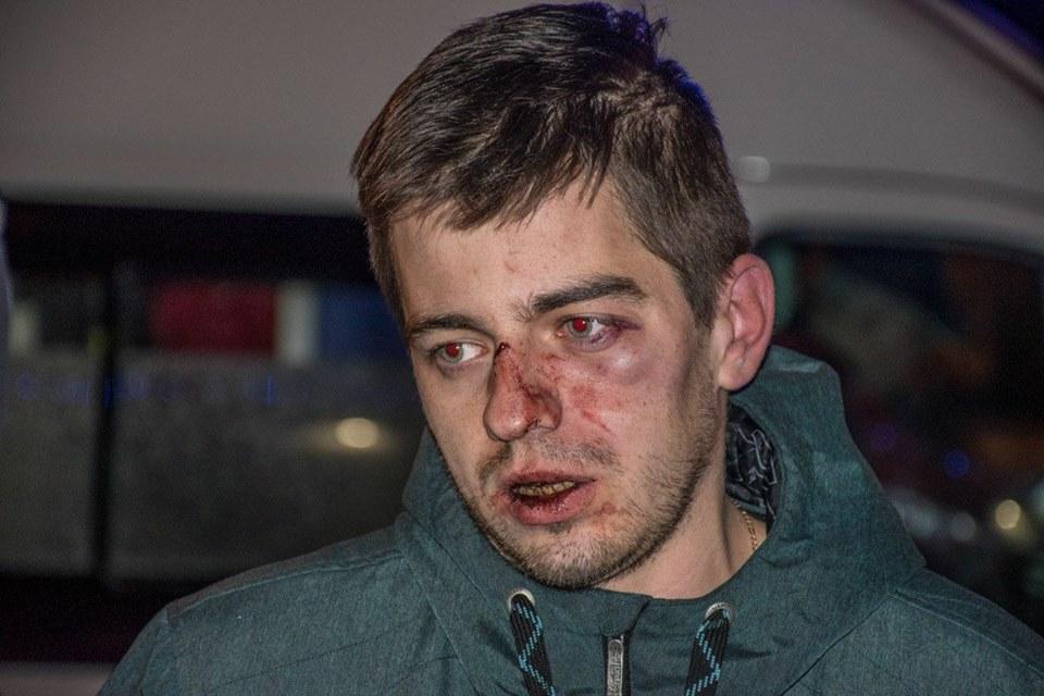 ВКиеве работники пиццерии избили клиентов