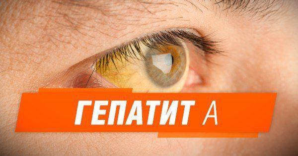 Что такое гепатит А: как не заразиться и симптомы (ИНФОГРАФИКА)