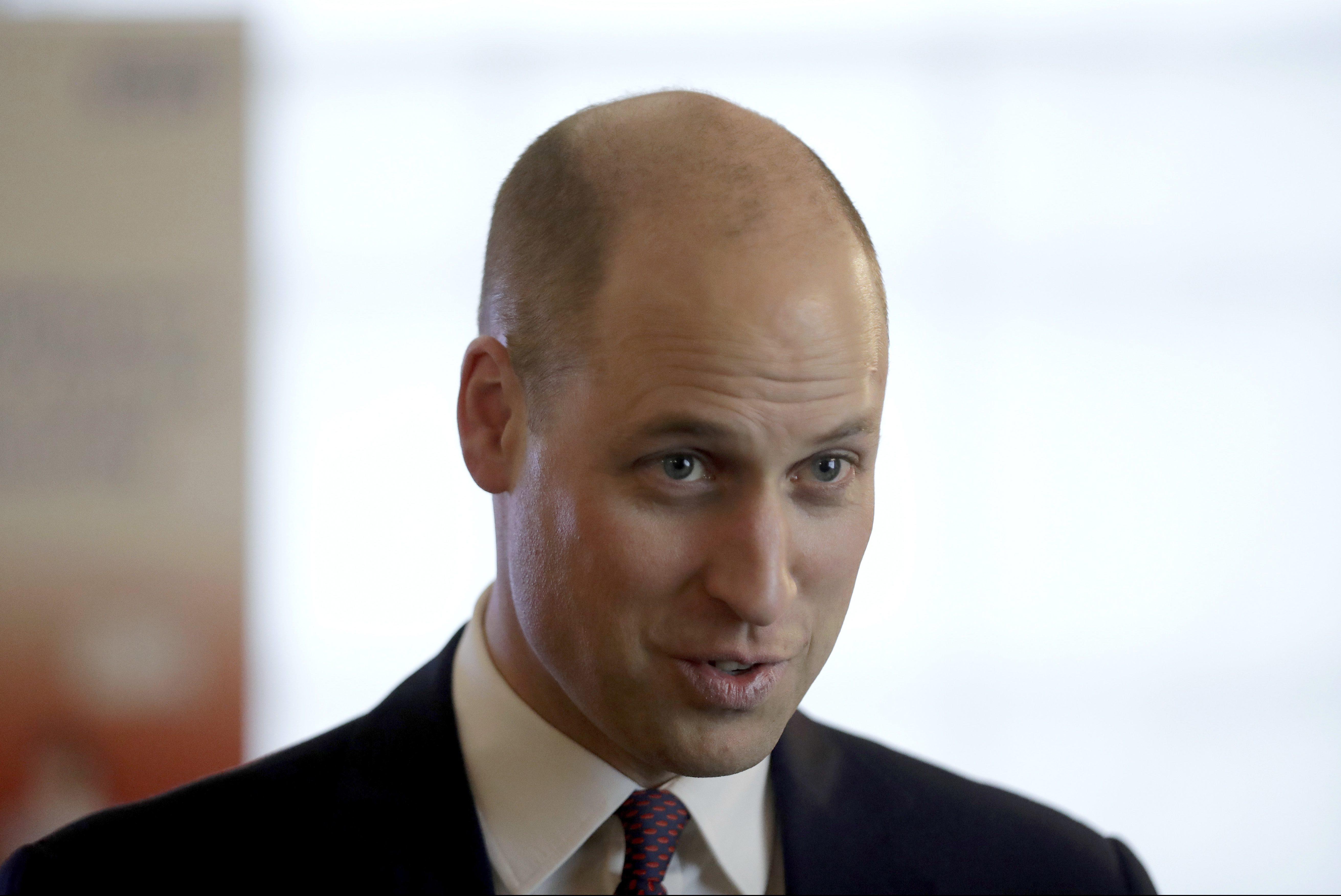 Принц Уильям стал навсе 100% лысым&nbsp