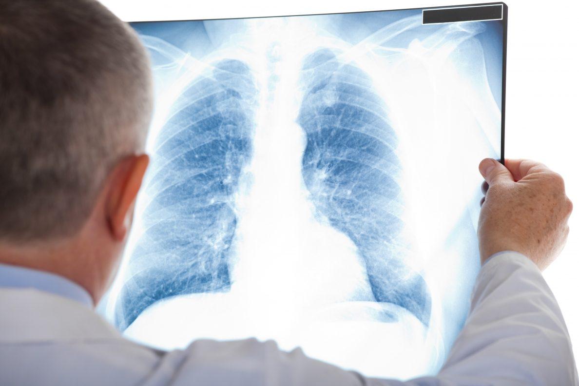 Польские медработники взволнованны эпидемией туберкулёза вУкраинском государстве