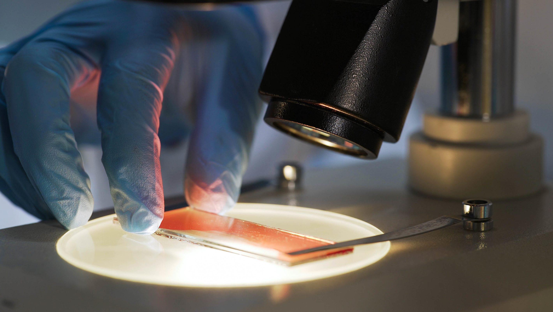 Дослідження крові на гемофілію