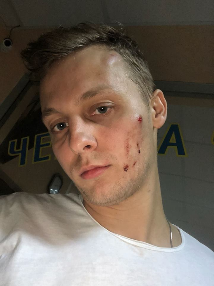 Сина Шуфрича побили