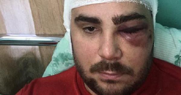 Побили і прострелили ногу: в Запоріжжі напали на лідера АвтоЄвроСили
