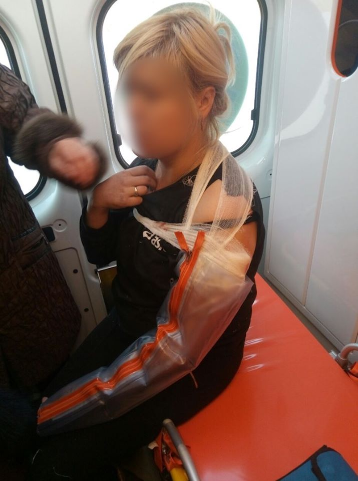 У Мар'їнці бойовики пострілом у груди поранили жінку