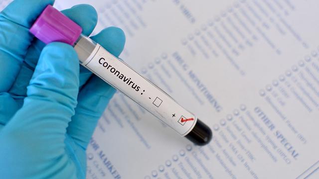 Тест-система на коронавірус: де проводять діагностику і що про неї відомо