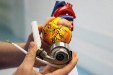 В київській лікарні вперше імплантували механічне серце