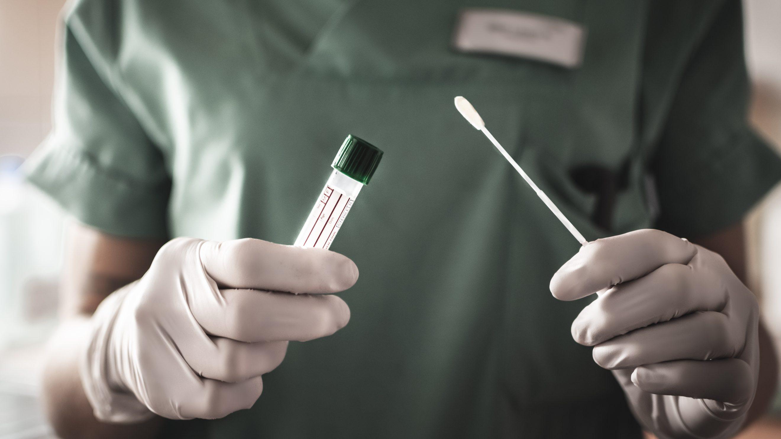 Коронавірус аналіз