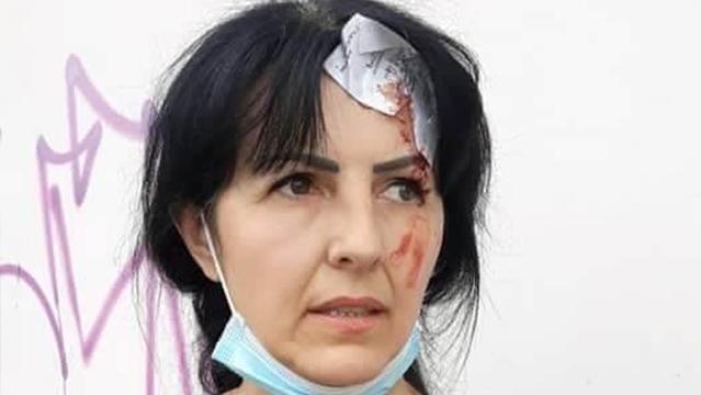 У Львові роми побили ветерана війни, яка намагалася завадити крадіжці