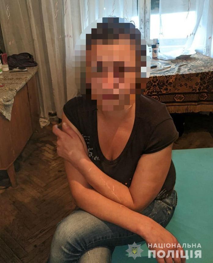 Загрожує 15 років: у Києві жінка в пориві гніву встромила чоловікові ніж у груди