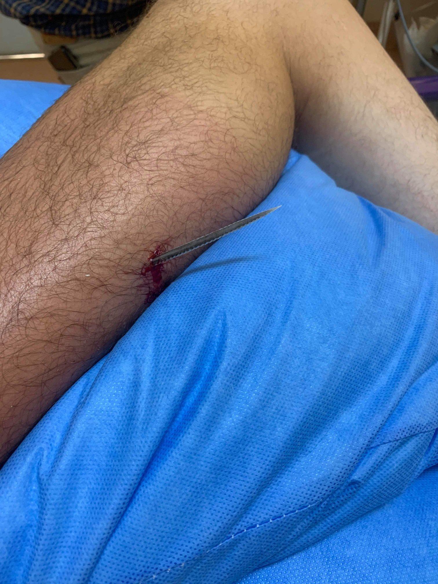 Лікар показав травму після того, як наступив на ската