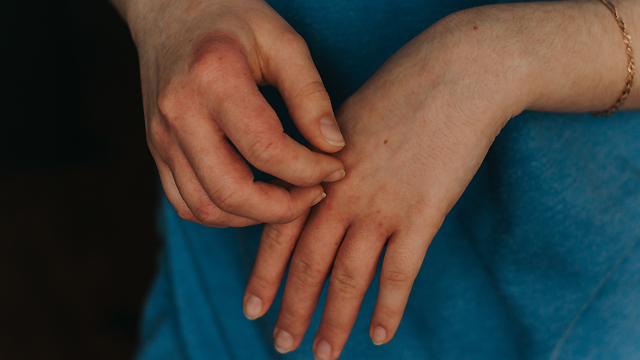 Мило не допоможе: науковці встановили, скільки днів Covid-19 може жити на шкірі