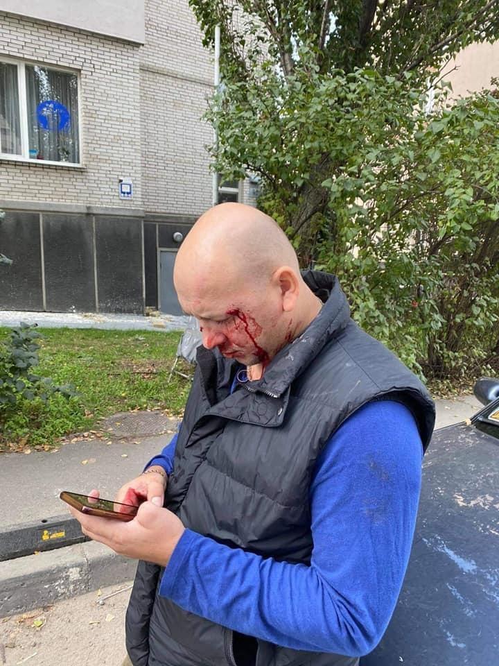 Ивана Деева избили в Киеве: подробности и фото