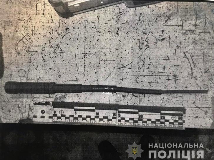 В Херсоне пьяные хулиганы побили и порезали ребенка из-за замечания