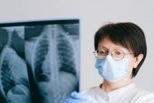 Лечение больных туберкулезом на первичном уровне медпомощи: что входит в пакет