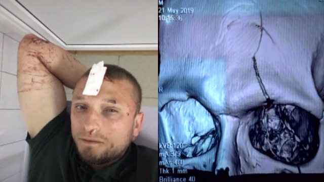 Метальний диск у лоб: у Броварах чоловік ледь не став інвалідом після прогулянки
