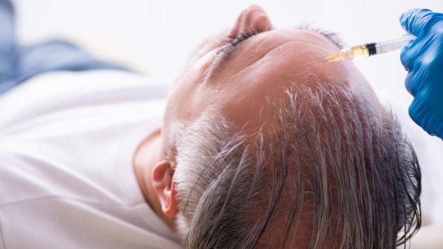 трансплантація волосся