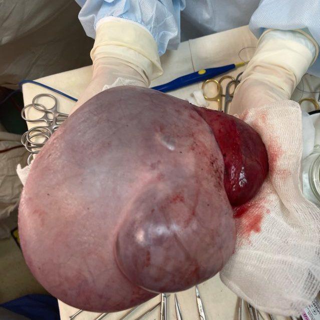 У Дніпрі хірурги провели унікальну операцію з видалення пухлини у новонародженого