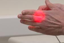 Світлом направляють ліки на хвору ділянку: розробка українських вчених у терапії раку